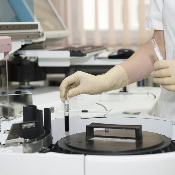 ¿Qué es el plasma rico en factores de crecimiento (PRGF)?