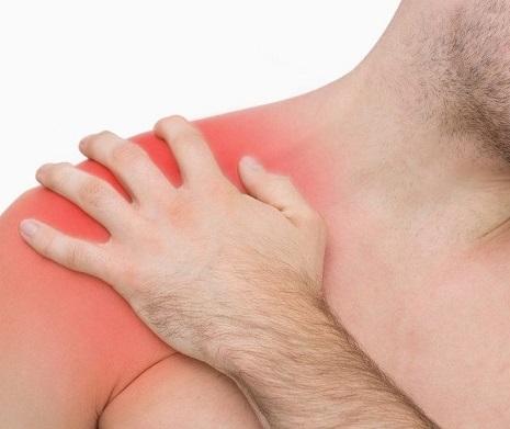 Luxación recidivante del hombro