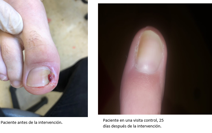 Tratamiento quirúrgico uña encarnada